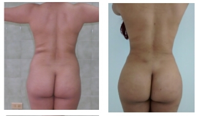 Brazilian Butt Lift 8